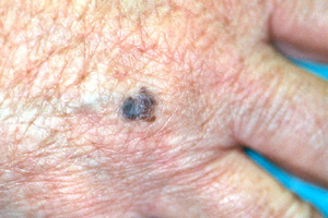 ABCDE's of Melanoma Skin Cancer